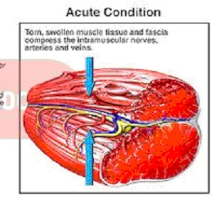 acute muscle-severe pain